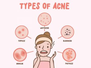 Top 10 tips for acne health care